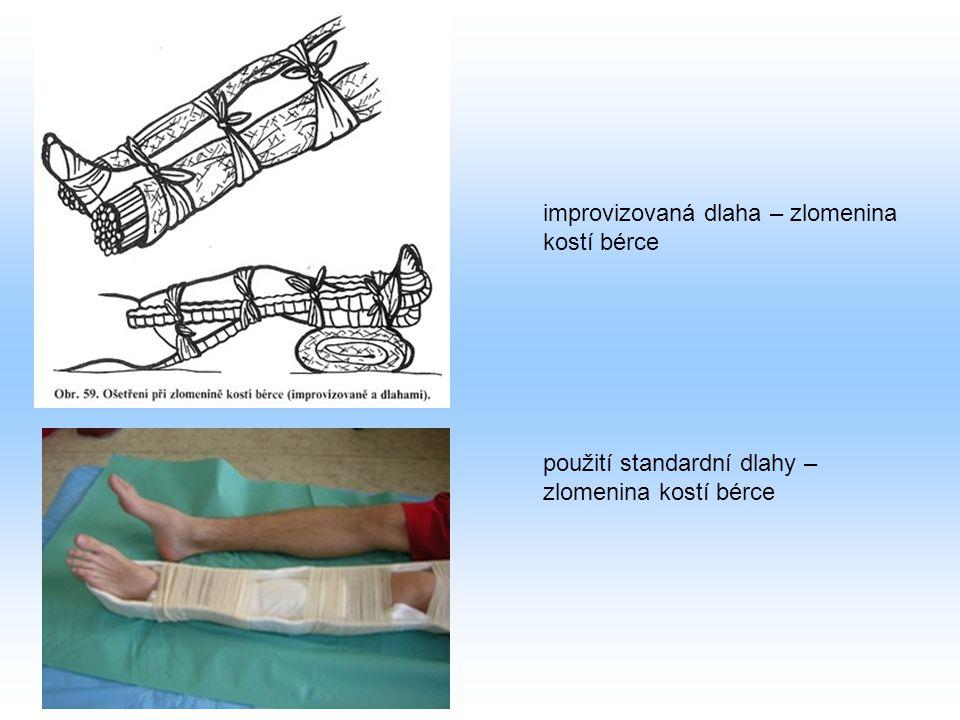 improvizovaná dlaha – zlomenina kostí bérce