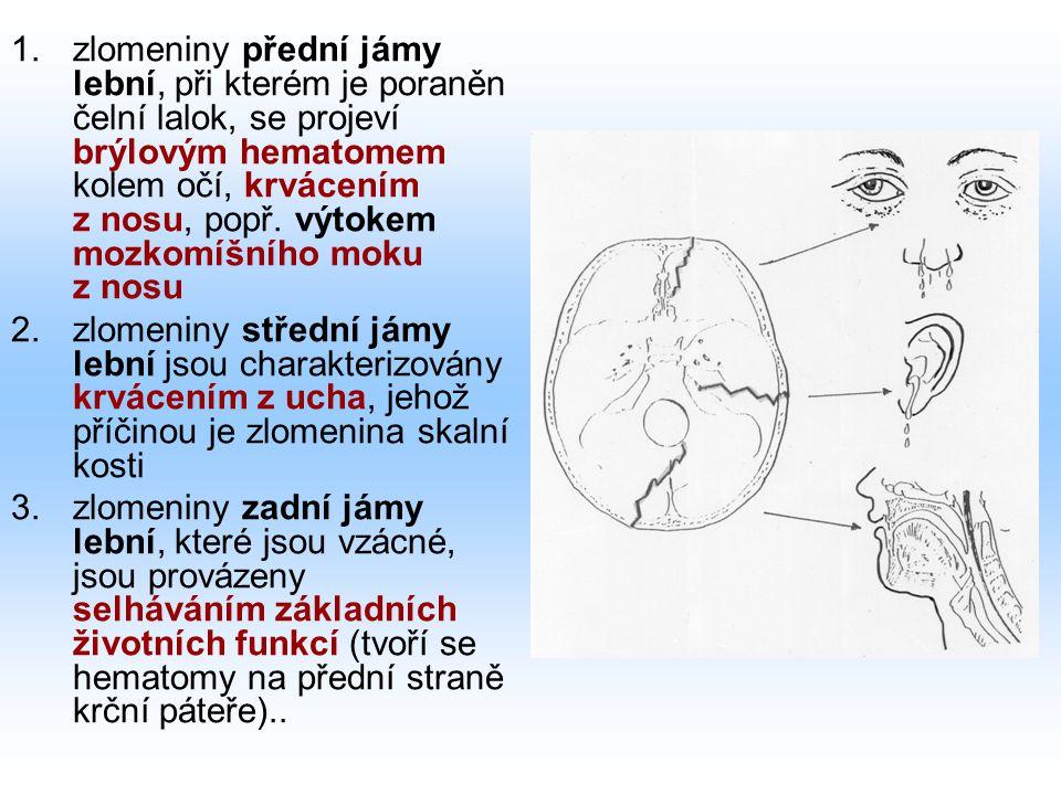 zlomeniny přední jámy lební, při kterém je poraněn čelní lalok, se projeví brýlovým hematomem kolem očí, krvácením z nosu, popř. výtokem mozkomíšního moku z nosu