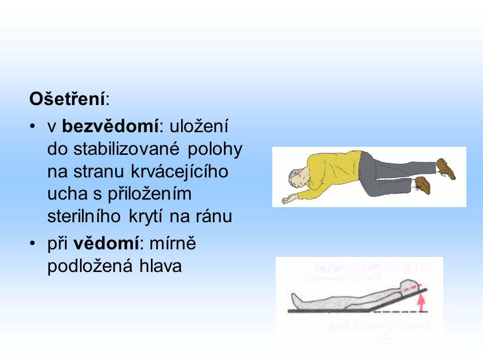 Ošetření: v bezvědomí: uložení do stabilizované polohy na stranu krvácejícího ucha s přiložením sterilního krytí na ránu.