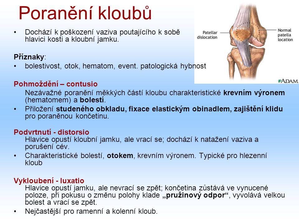 Poranění kloubů Dochází k poškození vaziva poutajícího k sobě hlavici kosti a kloubní jamku.