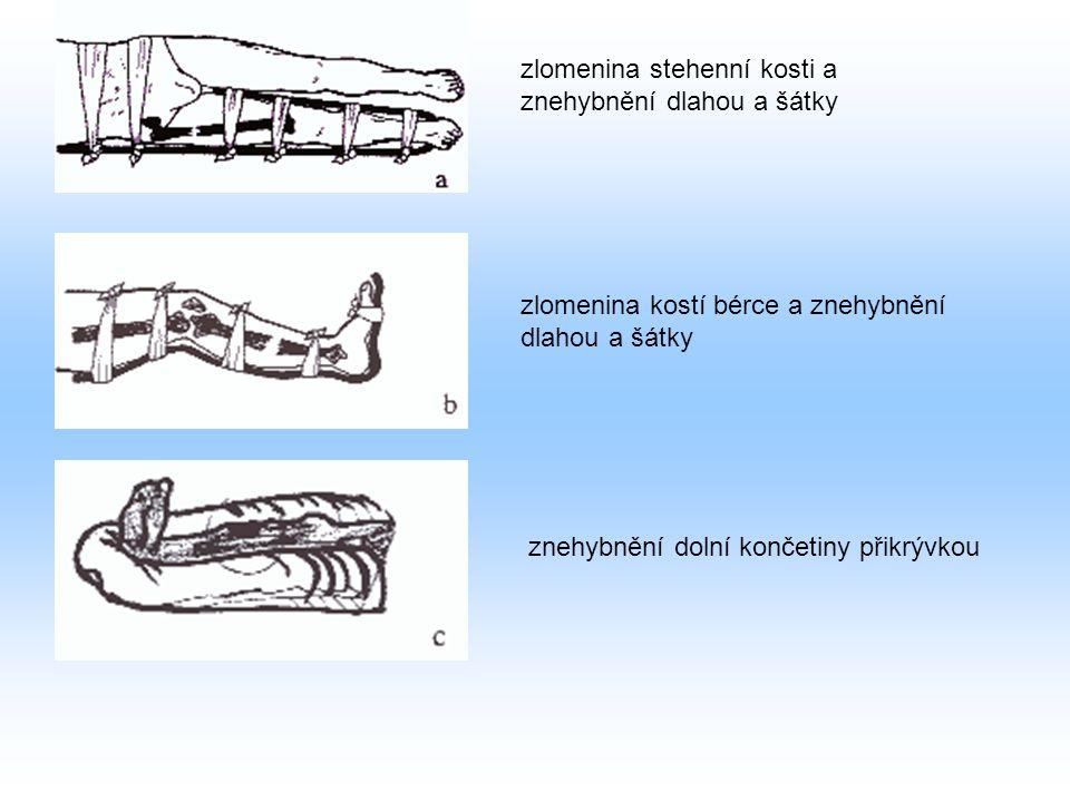zlomenina stehenní kosti a znehybnění dlahou a šátky