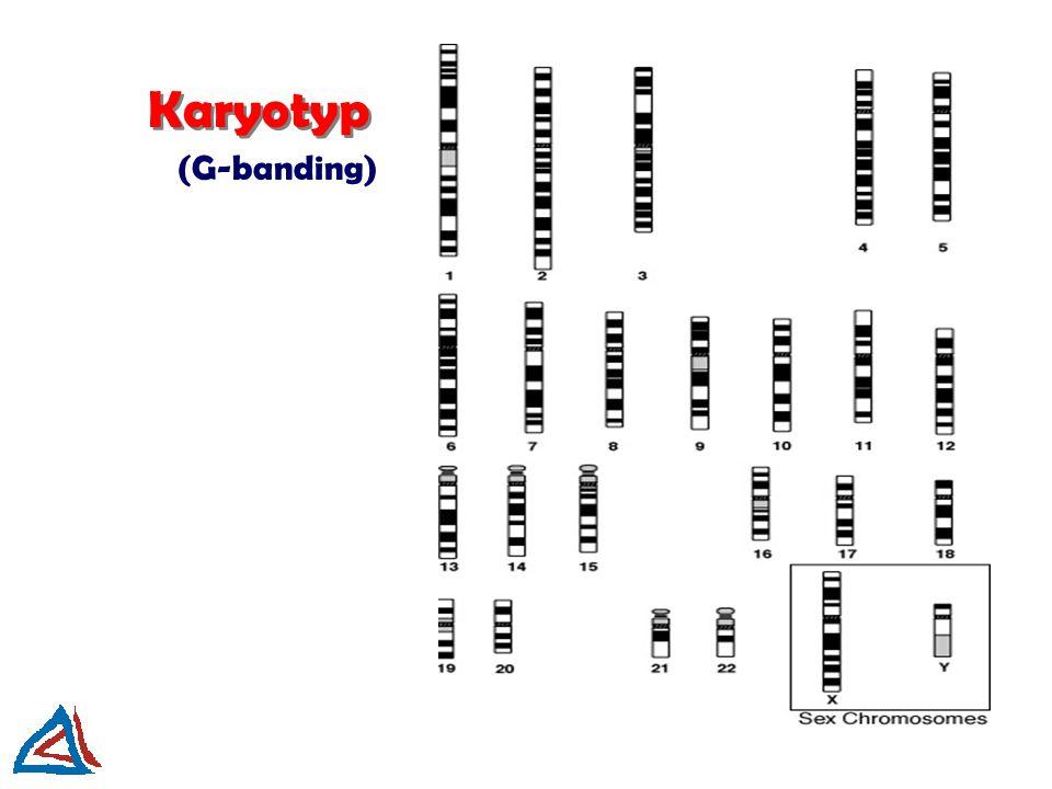 Karyotyp (G-banding)