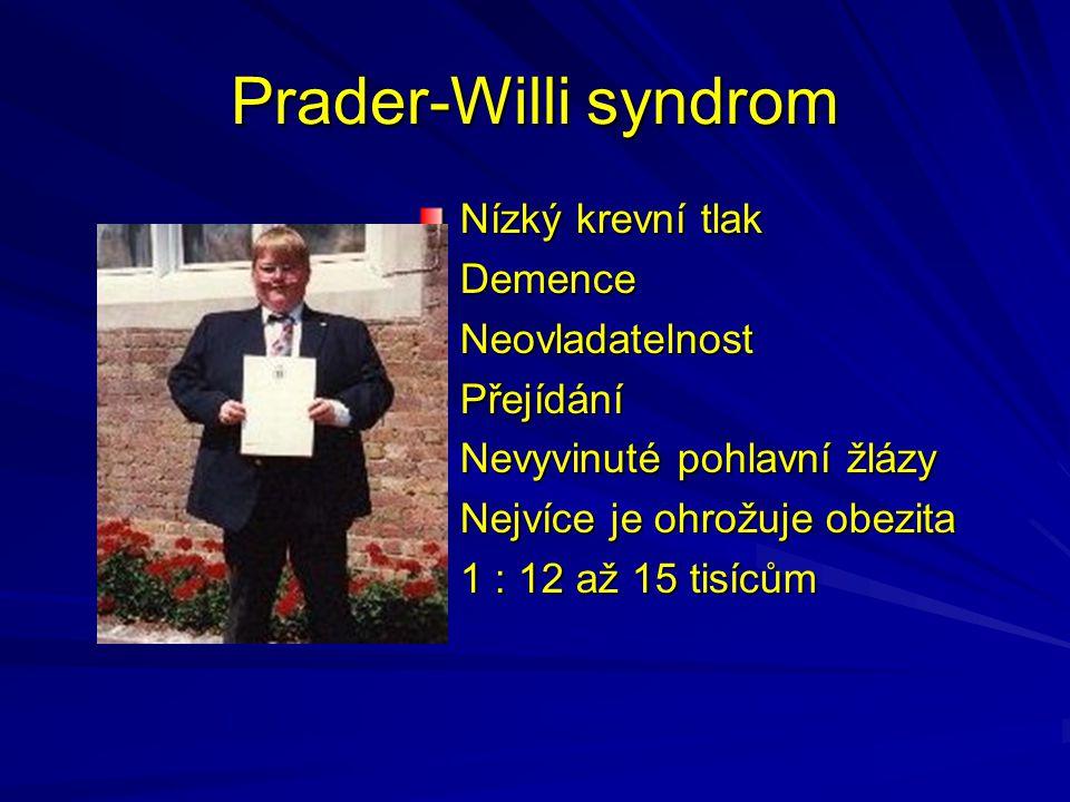 Prader-Willi syndrom Nízký krevní tlak Demence Neovladatelnost