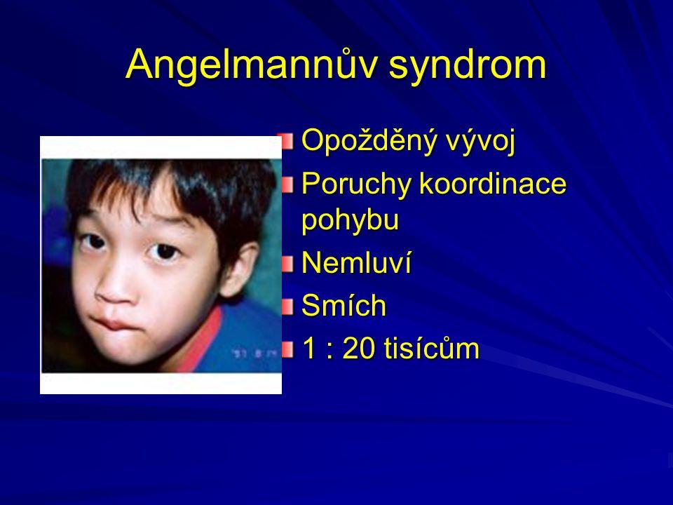 Angelmannův syndrom Opožděný vývoj Poruchy koordinace pohybu Nemluví