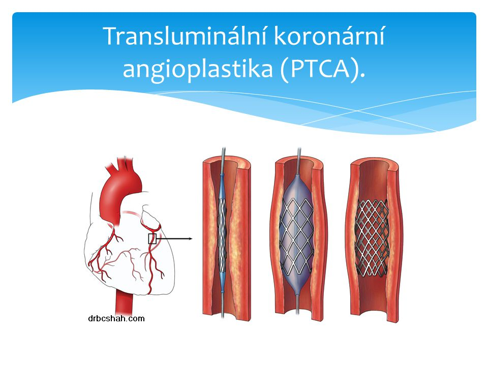Transluminální koronární angioplastika (PTCA).