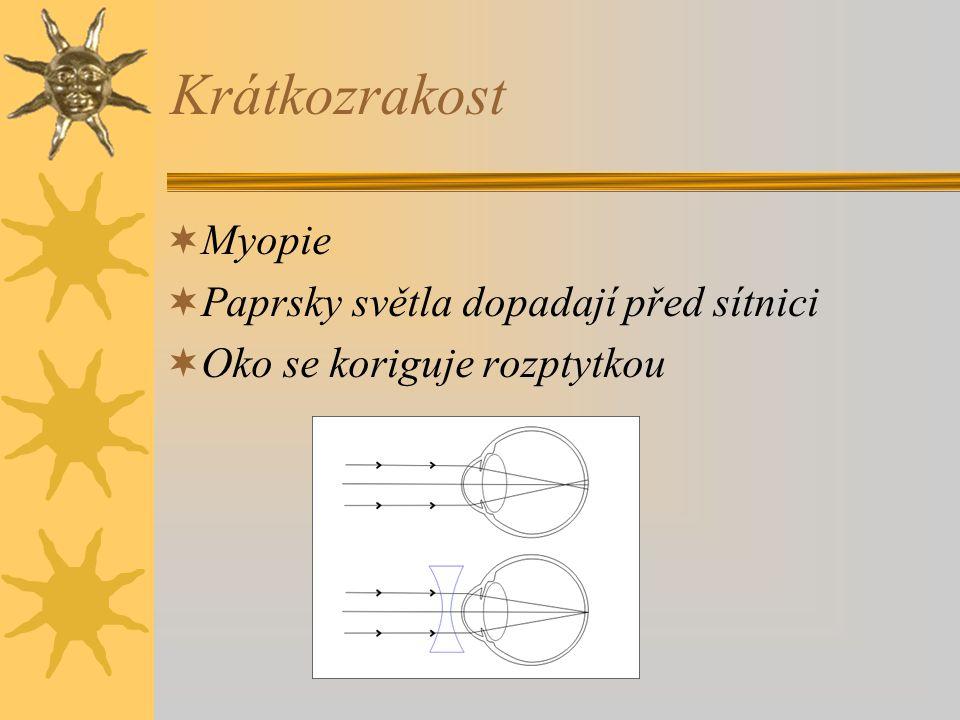 Krátkozrakost Myopie Paprsky světla dopadají před sítnici