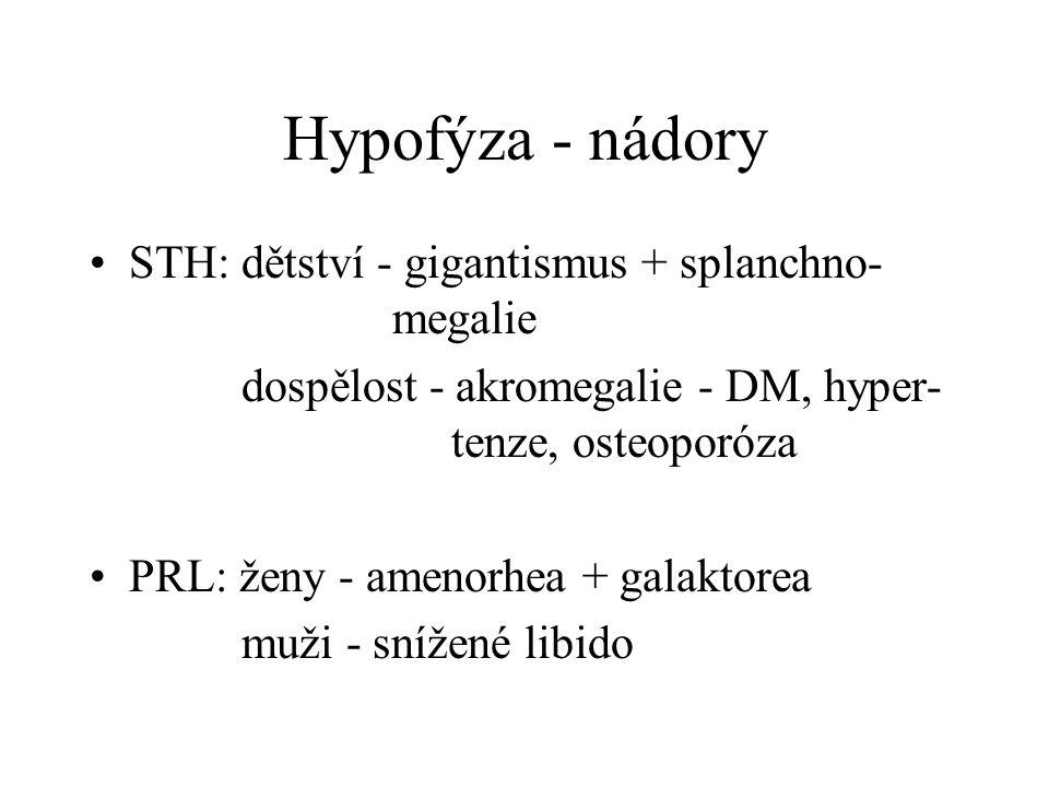Hypofýza - nádory STH: dětství - gigantismus + splanchno- megalie