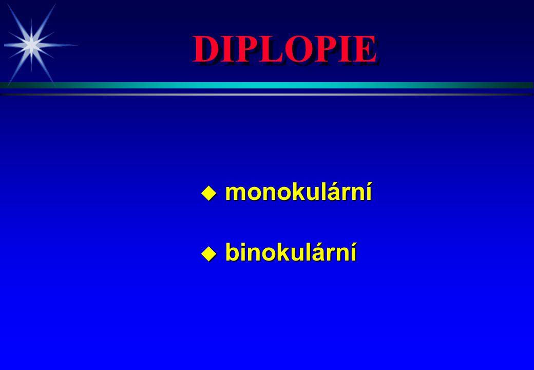 DIPLOPIE monokulární binokulární 4