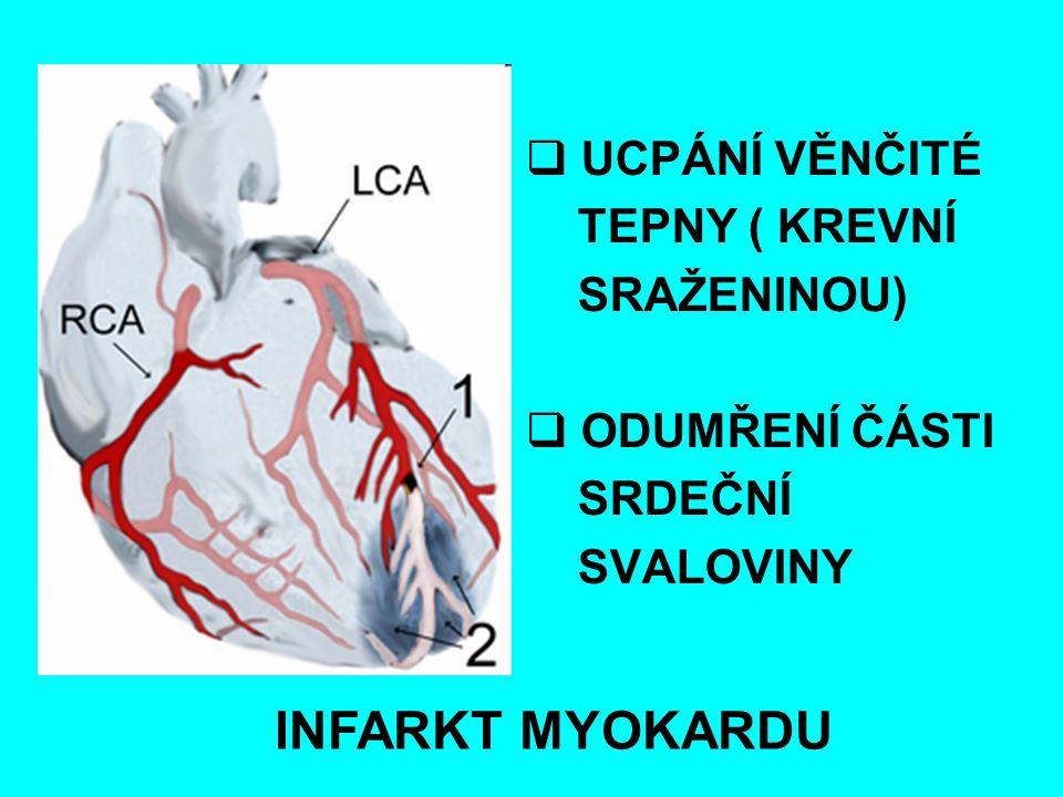 INFARKT MYOKARDU UCPÁNÍ VĚNČITÉ TEPNY ( KREVNÍ SRAŽENINOU)