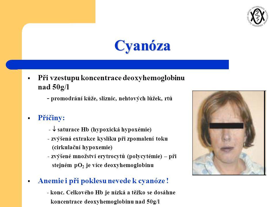Cyanóza Při vzestupu koncentrace deoxyhemoglobinu nad 50g/l