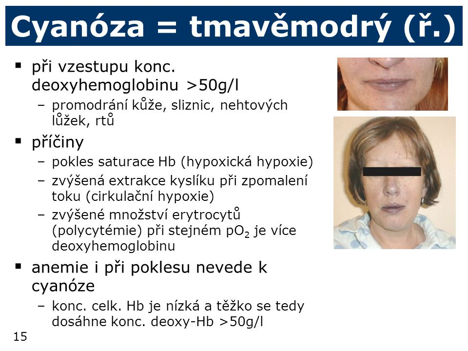 Cyanóza = tmavěmodrý (ř.)