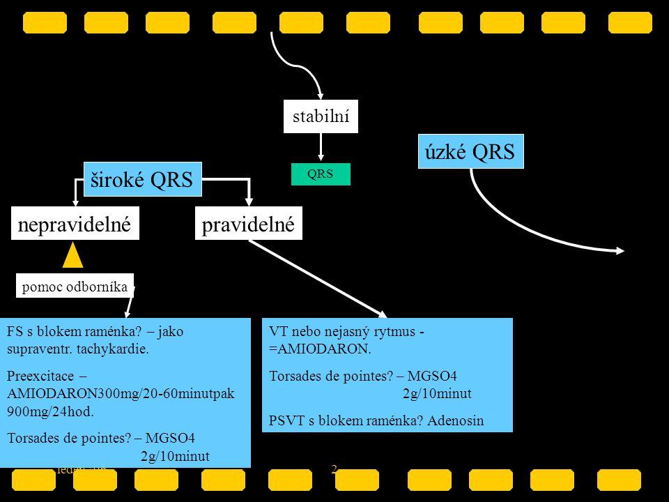úzké QRS široké QRS nepravidelné pravidelné stabilní pomoc odborníka