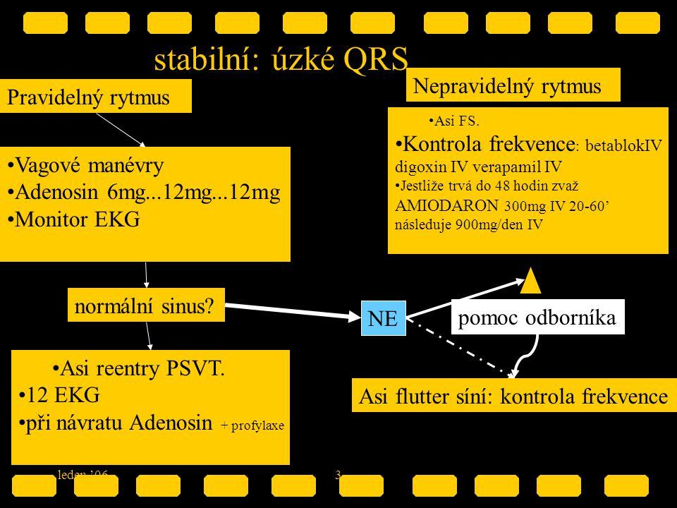 stabilní: úzké QRS Nepravidelný rytmus Pravidelný rytmus