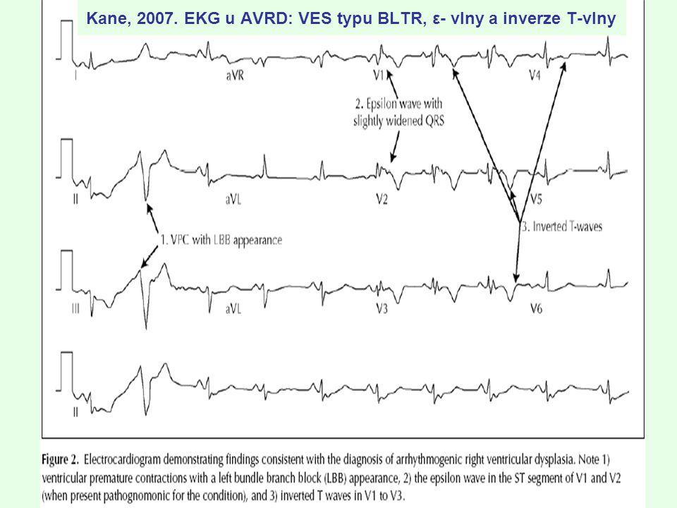 Kane, 2007. EKG u AVRD: VES typu BLTR, ε- vlny a inverze T-vlny