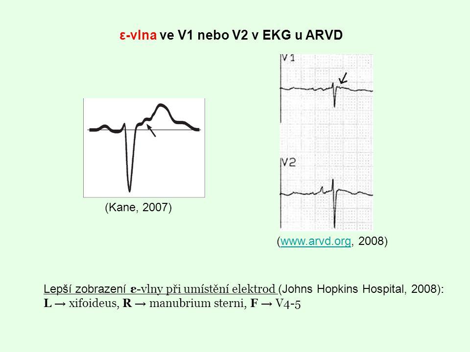 ε-vlna ve V1 nebo V2 v EKG u ARVD