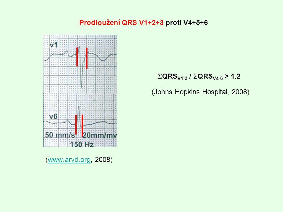Prodloužení QRS V1+2+3 proti V4+5+6
