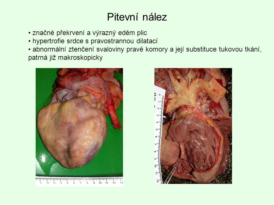 Pitevní nález značné překrvení a výrazný edém plic