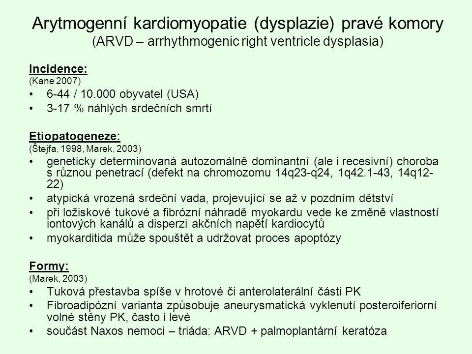 Arytmogenní kardiomyopatie (dysplazie) pravé komory (ARVD – arrhythmogenic right ventricle dysplasia)