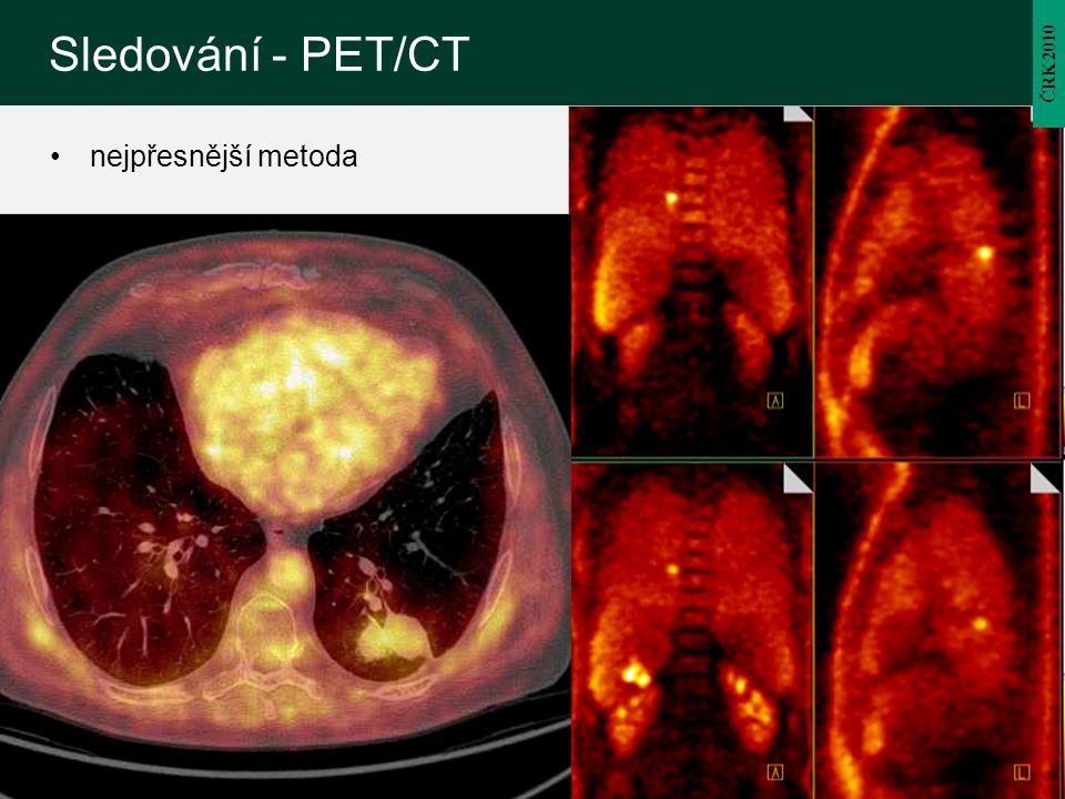 Sledování - PET/CT ČRK 2010 nejpřesnější metoda