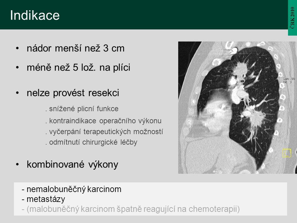 Indikace nádor menší než 3 cm méně než 5 lož. na plíci