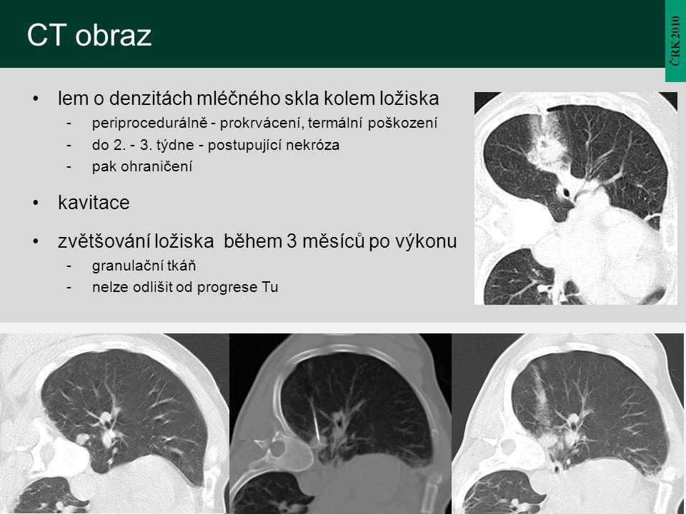 CT obraz lem o denzitách mléčného skla kolem ložiska kavitace