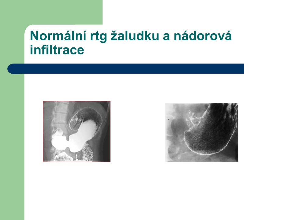 Normální rtg žaludku a nádorová infiltrace