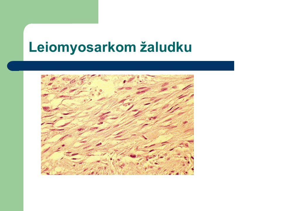 Leiomyosarkom žaludku