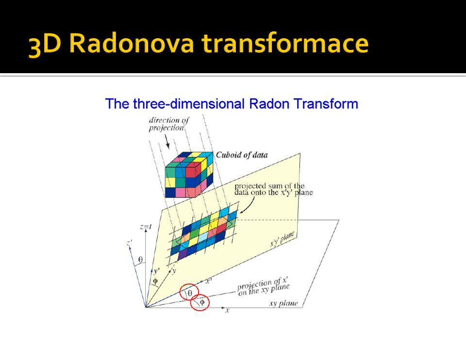 3D Radonova transformace