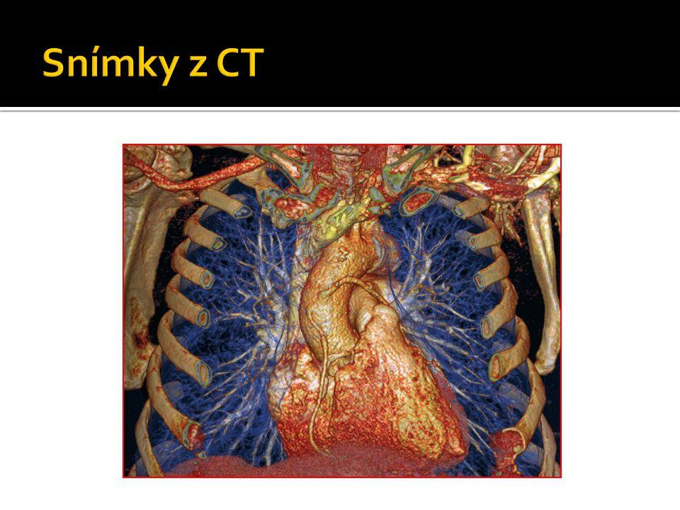 Snímky z CT