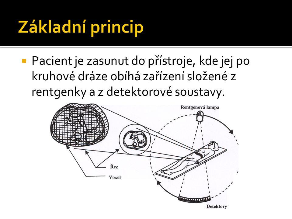 Základní princip Pacient je zasunut do přístroje, kde jej po kruhové dráze obíhá zařízení složené z rentgenky a z detektorové soustavy.