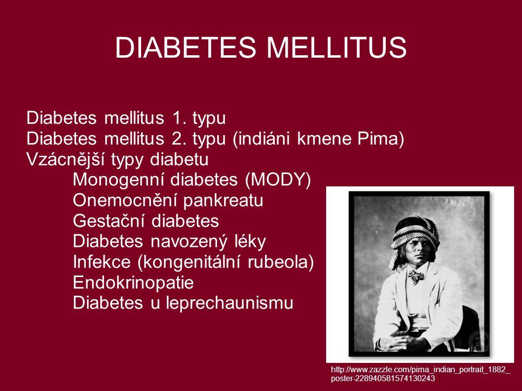 DIABETES MELLITUS Diabetes mellitus 1. typu