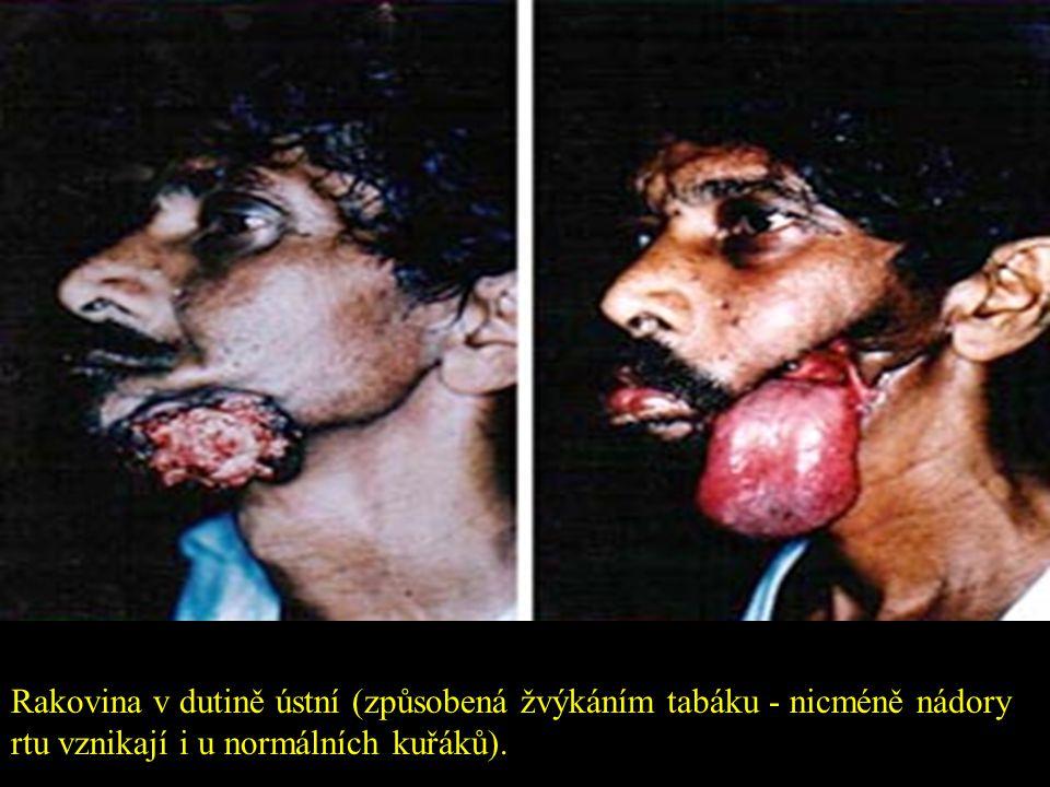 Rakovina v dutině ústní (způsobená žvýkáním tabáku - nicméně nádory rtu vznikají i u normálních kuřáků).