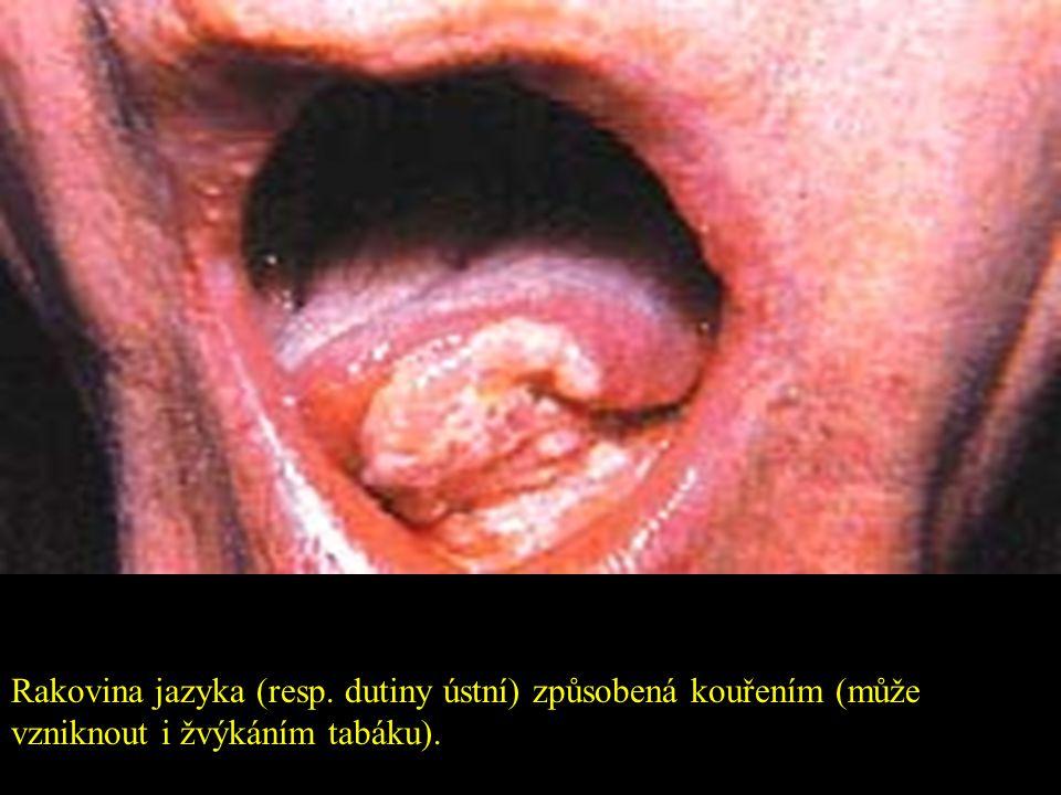Rakovina jazyka (resp. dutiny ústní) způsobená kouřením (může vzniknout i žvýkáním tabáku).