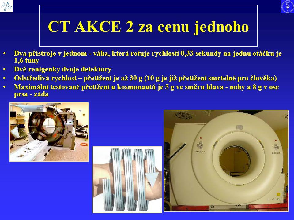 CT AKCE 2 za cenu jednoho Dva přístroje v jednom - váha, která rotuje rychlostí 0,33 sekundy na jednu otáčku je 1,6 tuny.