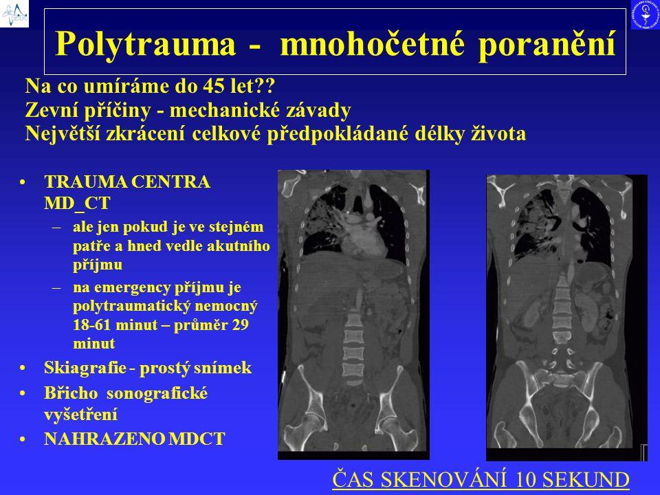 Polytrauma - mnohočetné poranění