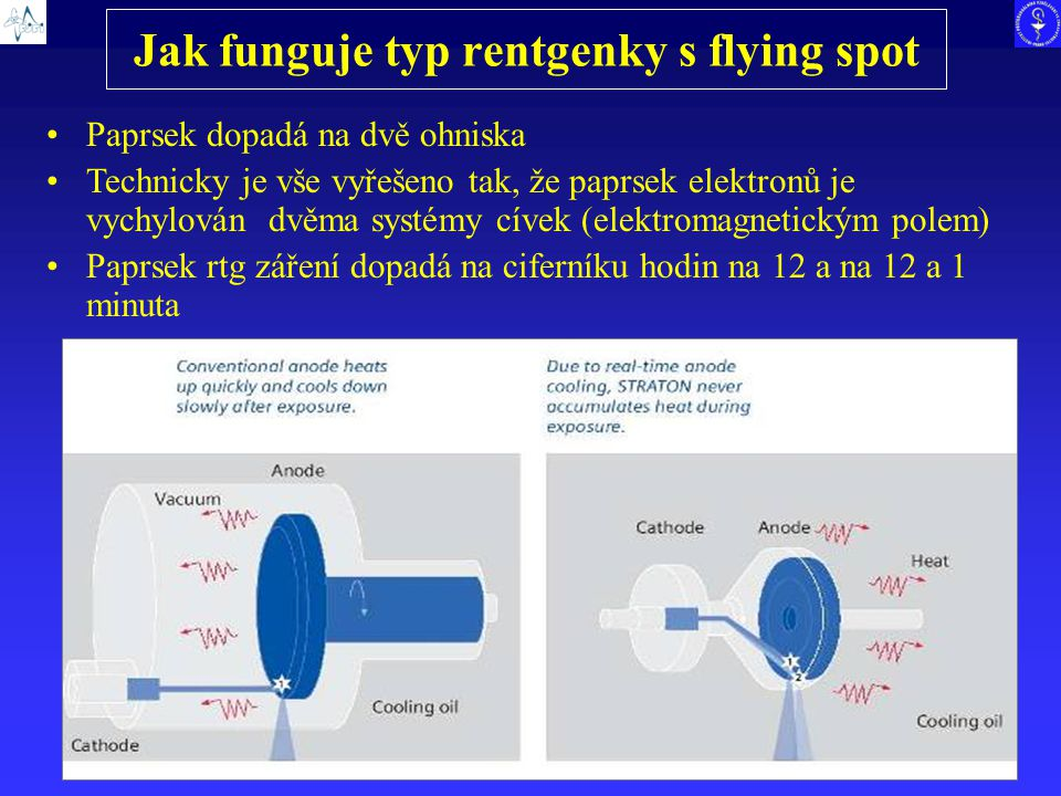 Jak funguje typ rentgenky s flying spot