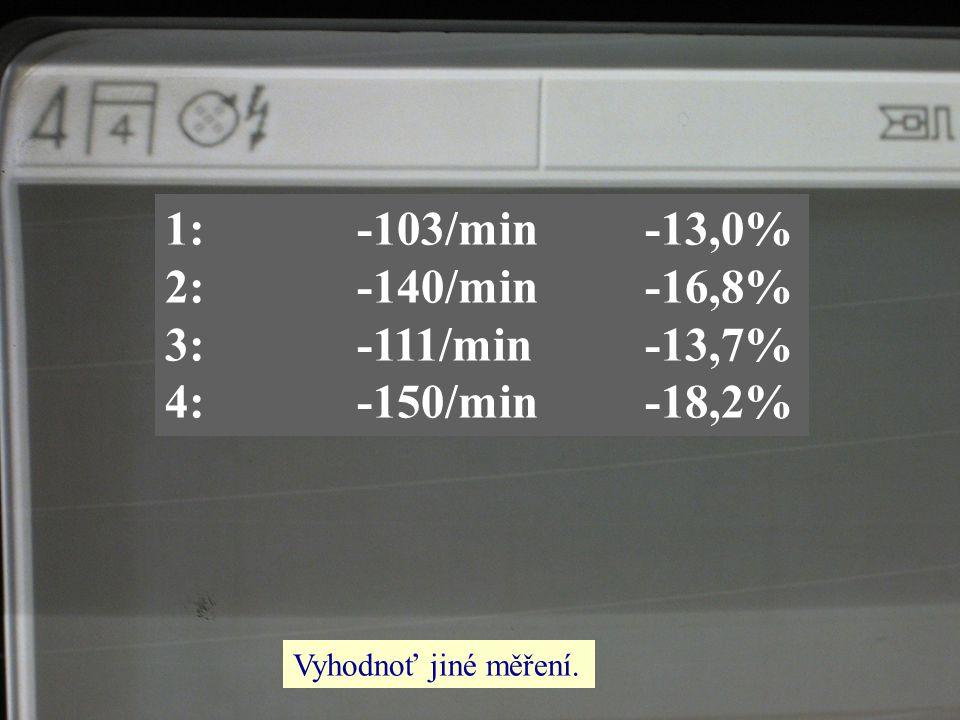 1: -103/min -13,0% 2: -140/min -16,8% 3: -111/min -13,7%