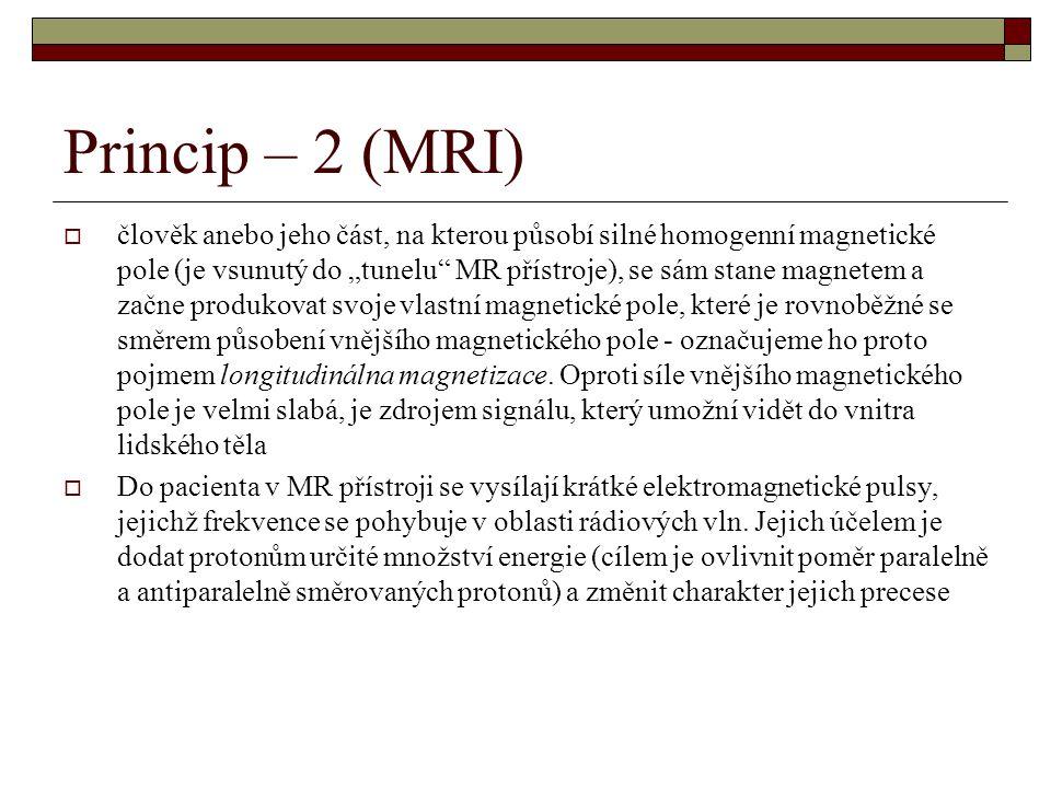 Princip – 2 (MRI)
