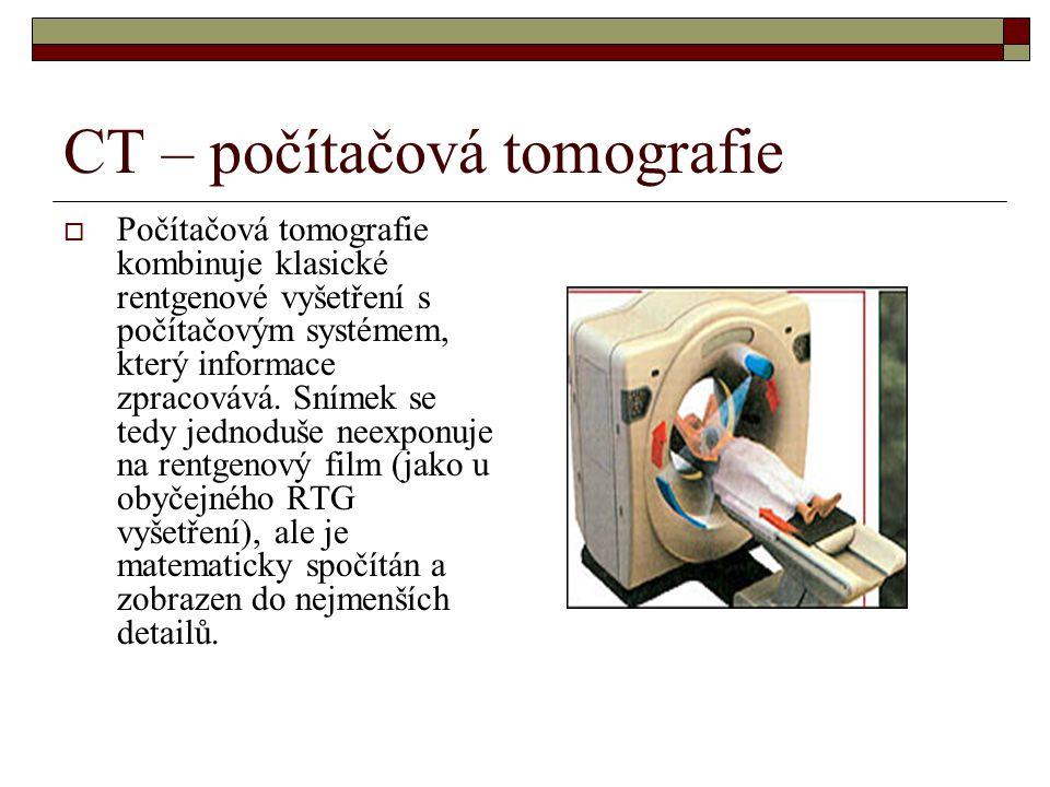 CT – počítačová tomografie