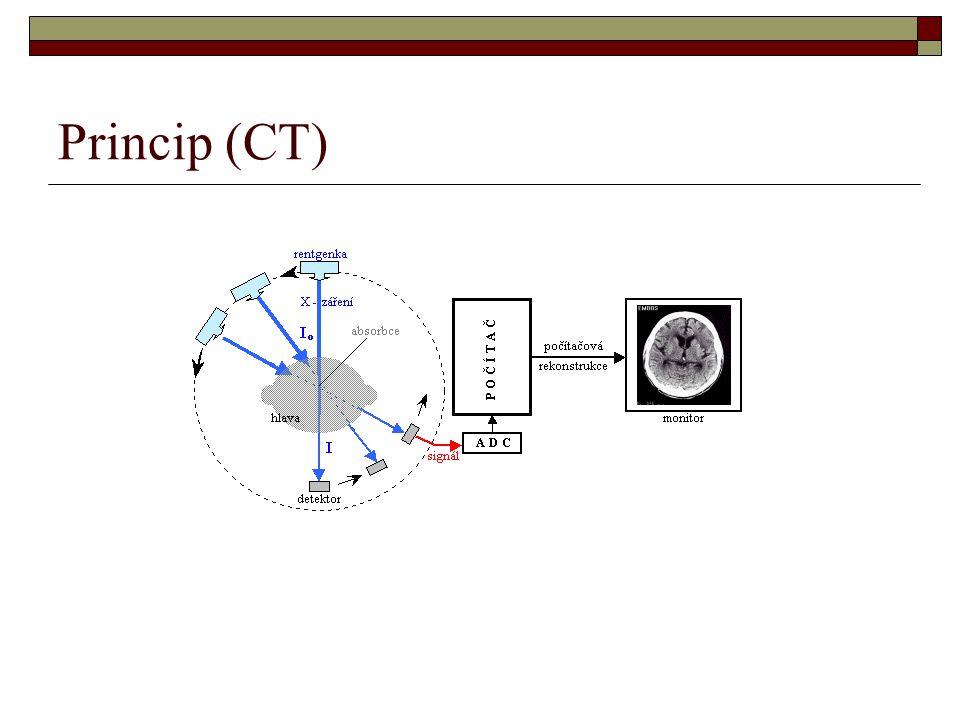 Princip (CT)