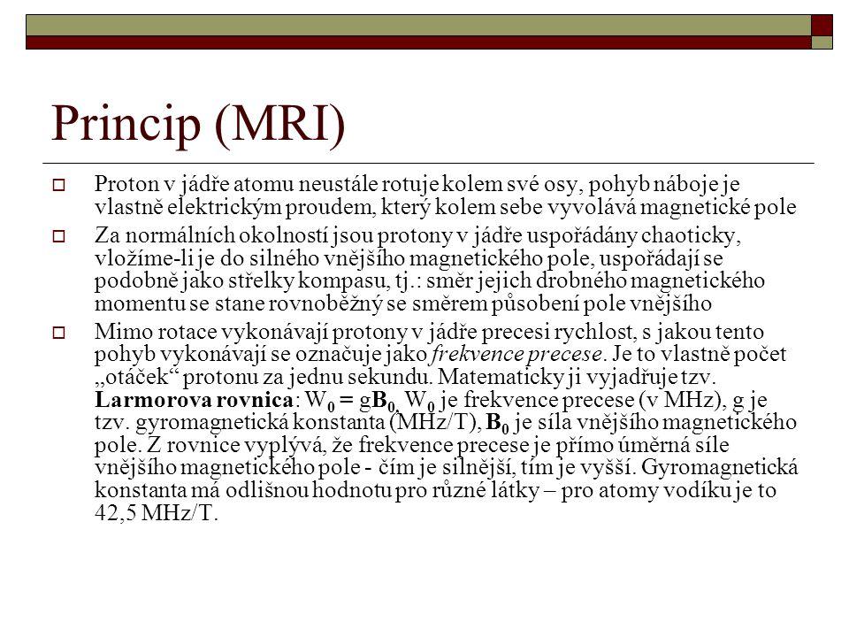 Princip (MRI)