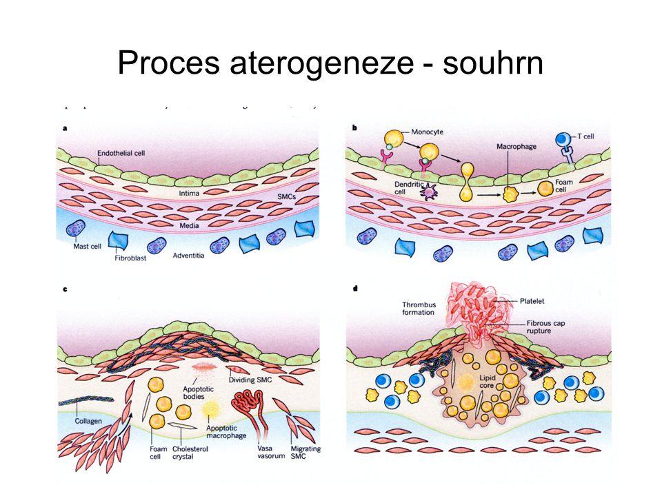 Proces aterogeneze - souhrn