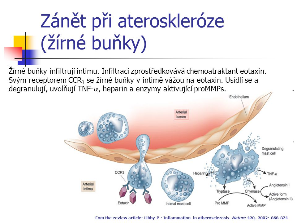 Zánět při ateroskleróze (žírné buňky)