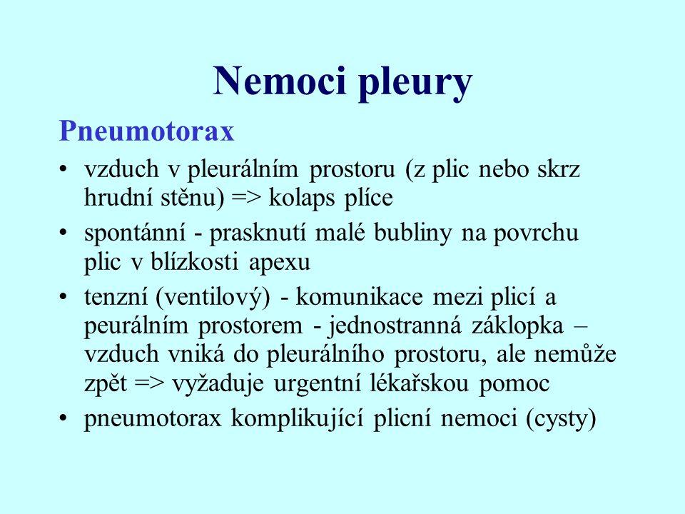 Nemoci pleury Pneumotorax
