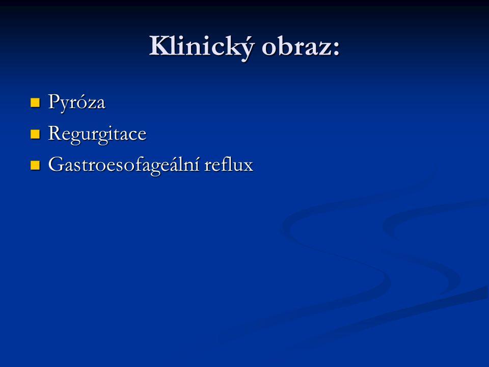 Klinický obraz: Pyróza Regurgitace Gastroesofageální reflux