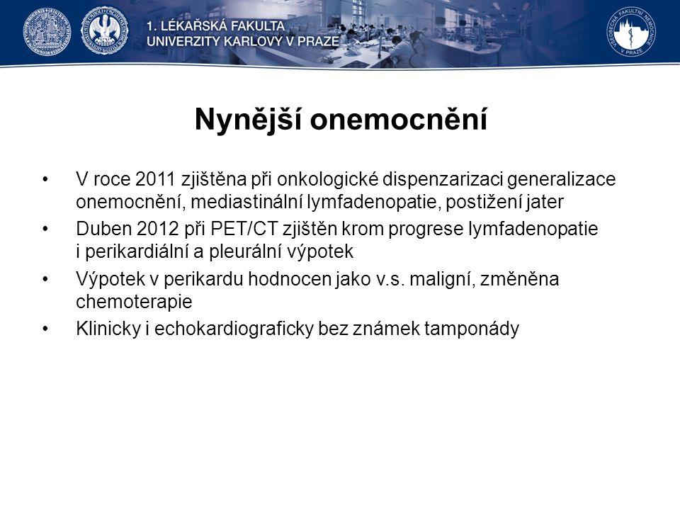 Nynější onemocnění V roce 2011 zjištěna při onkologické dispenzarizaci generalizace onemocnění, mediastinální lymfadenopatie, postižení jater.