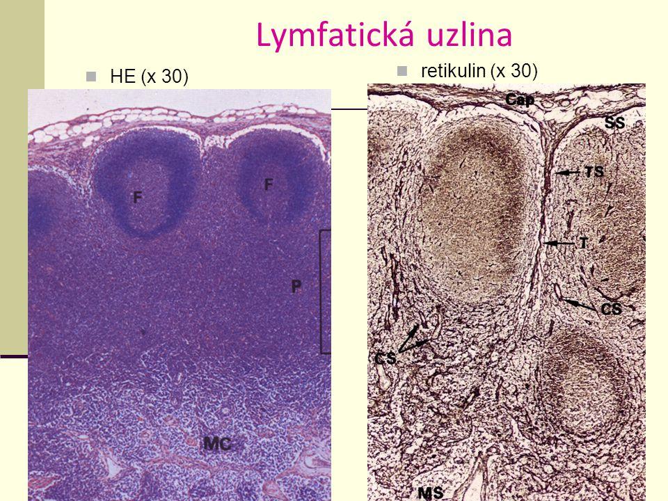 Lymfatická uzlina retikulin (x 30) HE (x 30)