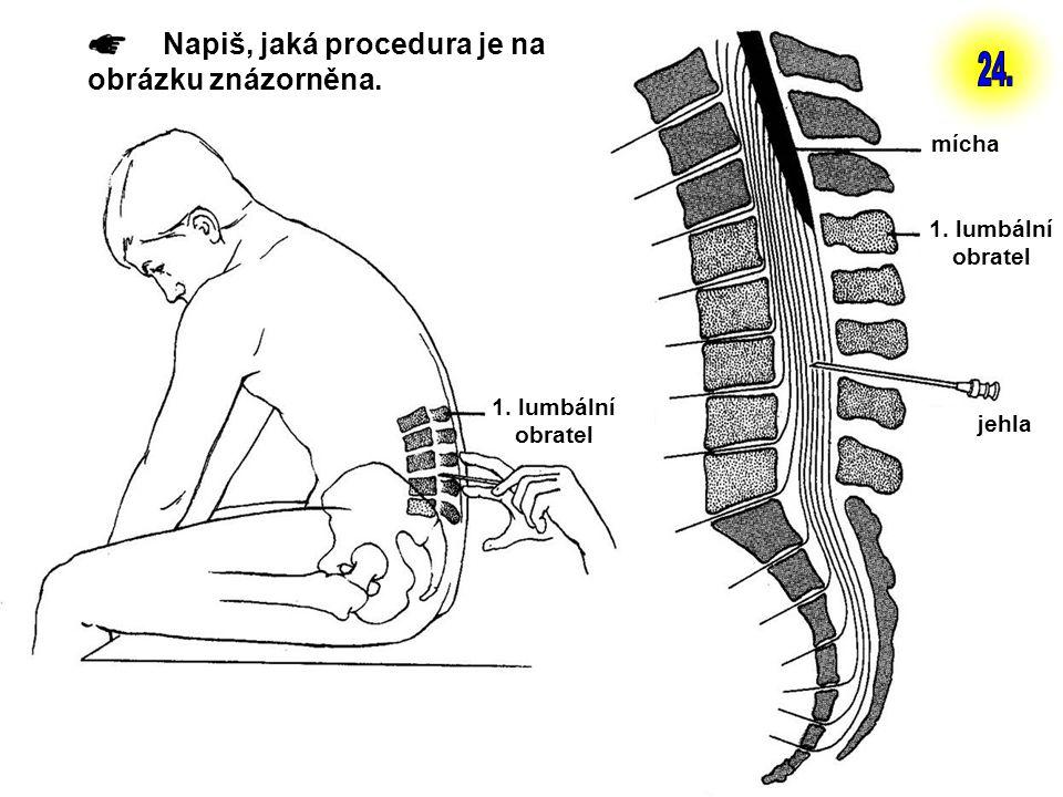 24. Napiš, jaká procedura je na obrázku znázorněna. mícha