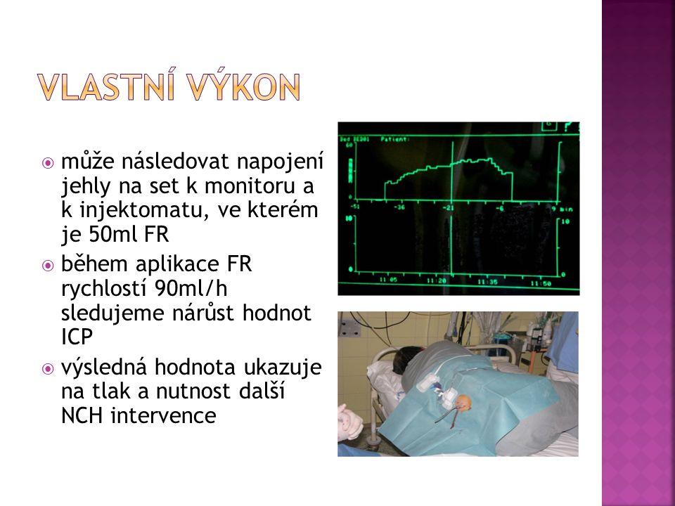 Vlastní výkon může následovat napojení jehly na set k monitoru a k injektomatu, ve kterém je 50ml FR.