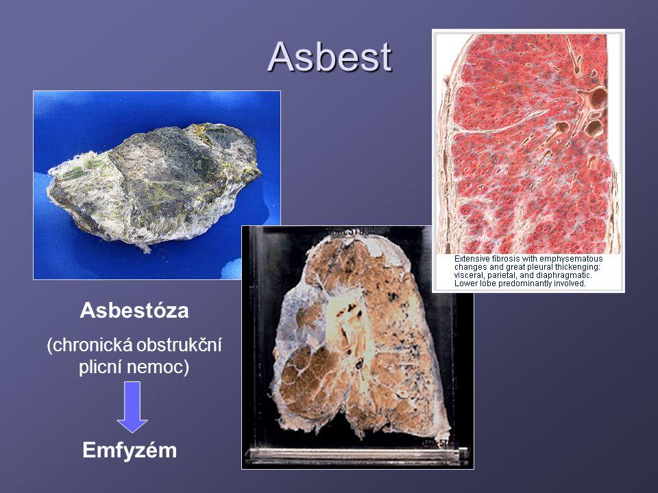 (chronická obstrukční plicní nemoc)